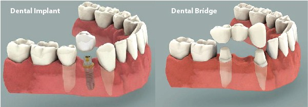 Dental Implants for Tooth Replacement or Bridge Support