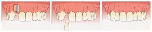 Single Prosthesis Dental Implants