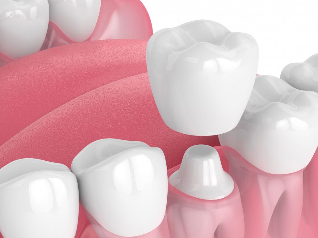 CEREC Dental Crowns