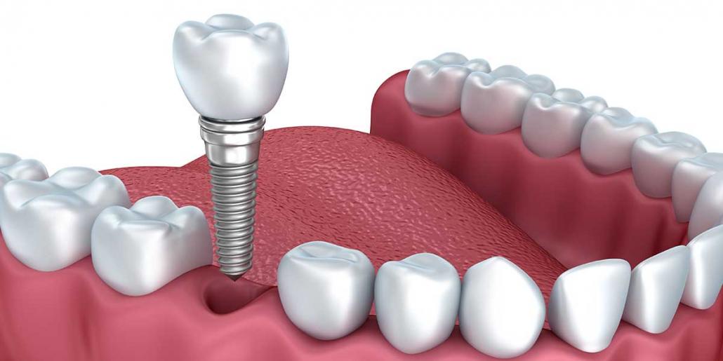 dental implants worth